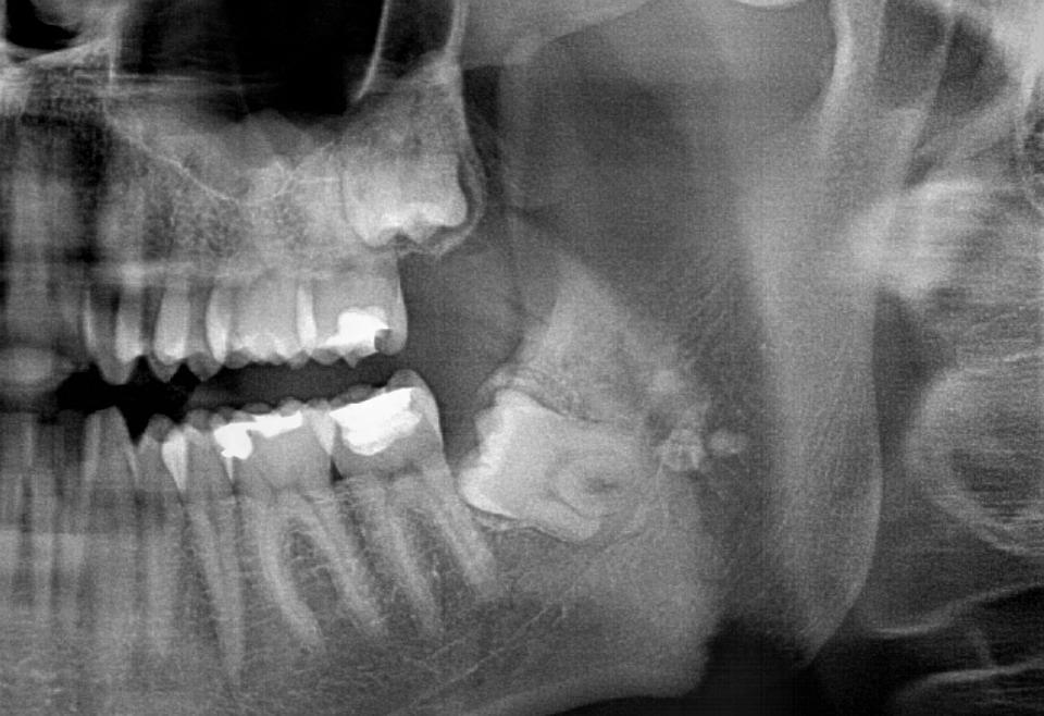 Poluimpaktirani/impaktirani treći molari (umnjaci)